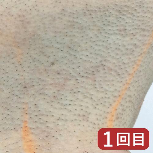 ひげ脱毛経過例1