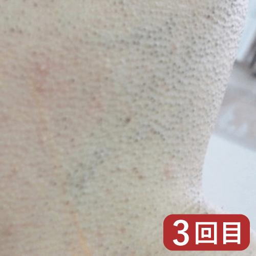 ひげ脱毛経過例2